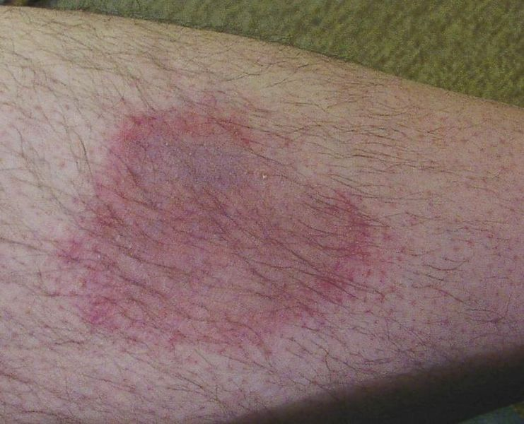Wanderröte als Spätfolge eines Zeckenstichs mit Borrelioseinfektion