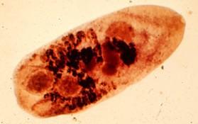 Metagonimus yokogawai, kleiner Darmegel aus der Gruppe der Saugwürmer