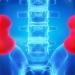 Bei der Wasserharnruhr fehlt den Nieren ein wichtiges Hormon, um die