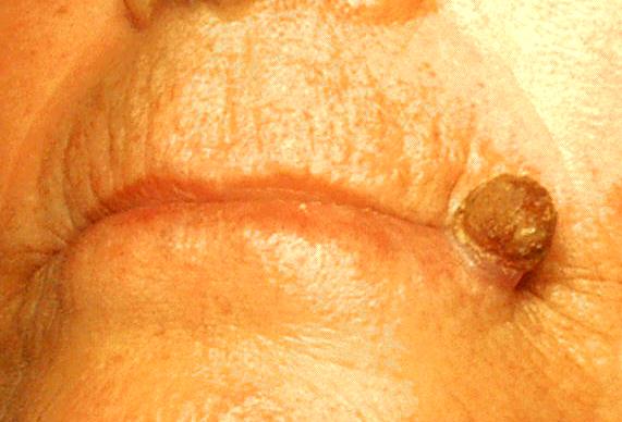 apotheken-wissen.de: Aktinische Keratose an der Lippe