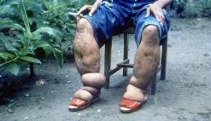 Elefantenkrankheit: Beine eines Erkrankten