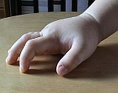 Schwellung der Hand durch das heriditäre Angioödem