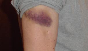 Bluterguss behandeln mit 10 Tipps
