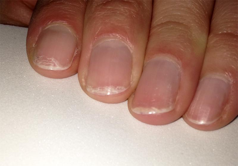 Die Spezies des Nagels nach der Behandlung