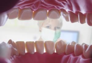 Implantate oder ein Gebiss als Zahnersatz - apotheken-wissen.de
