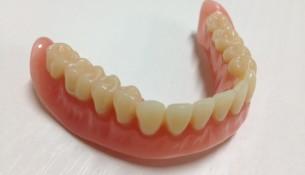Zahnersatz Unterkiefer - apotheken-wissen.de