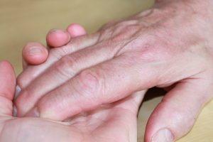 Alien-Hand-Syndrom - apotheken-wissen.de