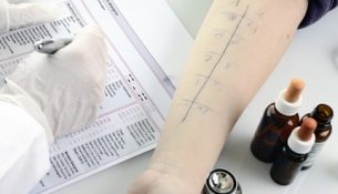 Pricktest bei Histaminunverträglichkeit - apotheken-wissen.de