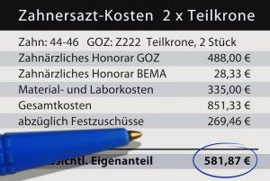 Zahnersazt-Kosten -apotheken-wissen.de