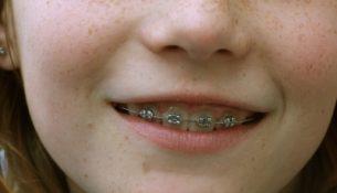 Zahnspange - apotheken-wissen.de