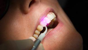 Laserbehandlung beim Zahnarzt - apotheken-wissen.de
